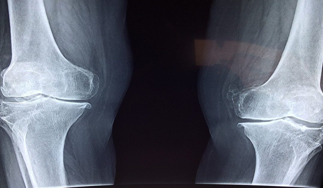 Common Misconceptions About Stem Cell Therapy for Knees