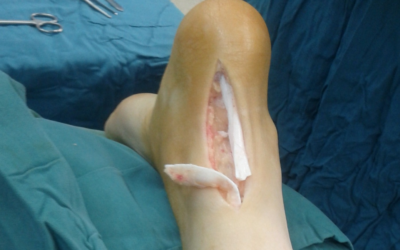 Suffering From a Thigh Tendon Injury? Try Stem Cell Therapy