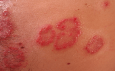 PRP For Shingles? This Treatment May be Available In the Near Future